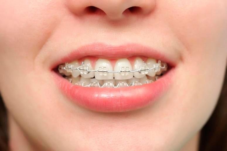 preco de aparelho dentario