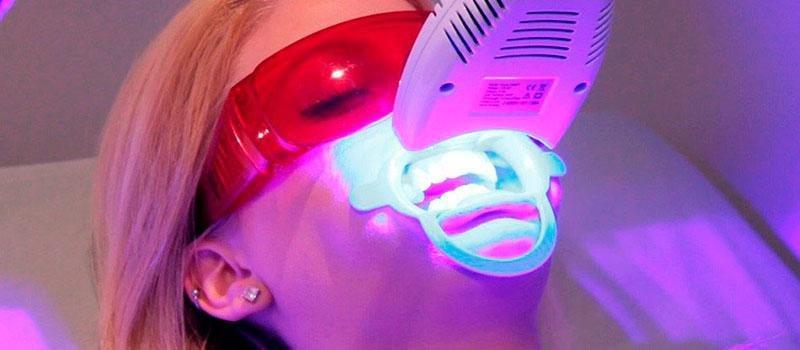 Branqueamento Dentario Preco Ideal Odonto