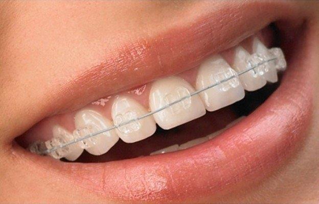 Convênio barato para dentes