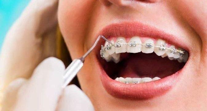 Melhor plano dentário do brasil