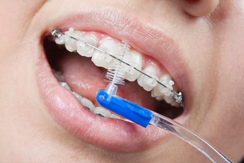 Plano odontológico cobre manutenção aparelho