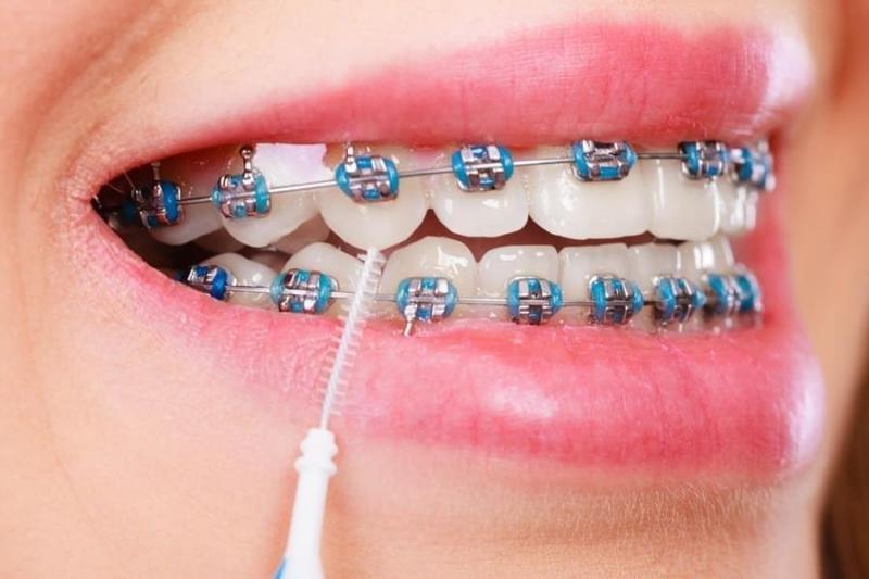 Plano odontológico que cobre aparelho e manutenção