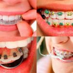 Aparelhos odontológicos