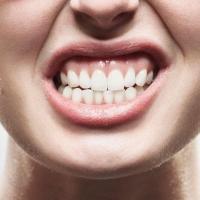 Bruxismo dor de dente