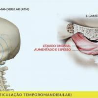 Cirurgia de ATM antes e depois