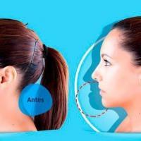 Cirurgia bucomaxilo antes e depois