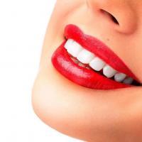 Clareamento dental estraga os dentes