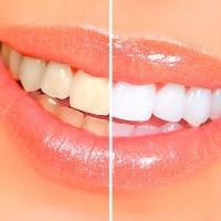 Clareamento de Dente