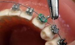 Melhor plano dentário rj