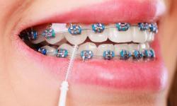 Plano odontológico com cobertura de aparelho e manutenção