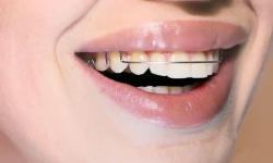Plano odontológico ortodontia