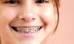 Planos odontológicos rj