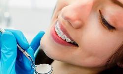 Vale a pena plano odontológico