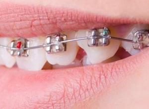 Melhor plano odontológico de sp