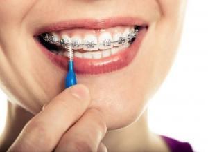 Plano odontológico que cobre manutenção de aparelho