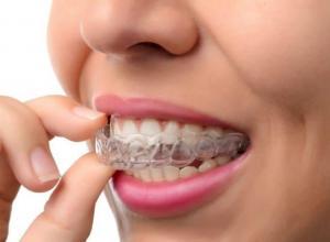 Quais os melhores planos odontológicos