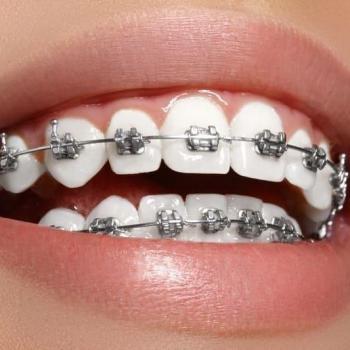 Convênio odontológico que cobre aparelho