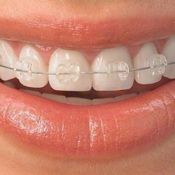 Plano odontológico completo